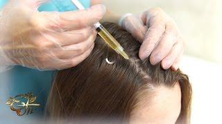 Плазмотерапия волосистой части головы  в