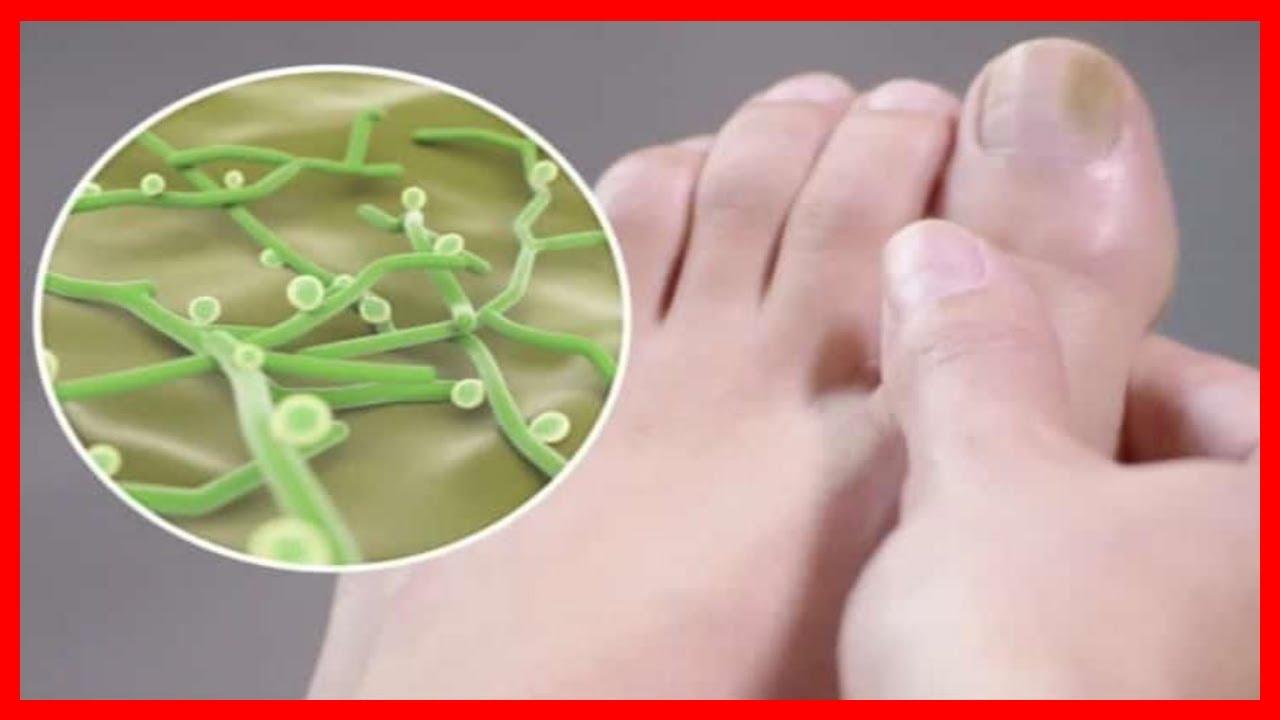 eliminar hongos en las uñas delos pies con bicarbonato