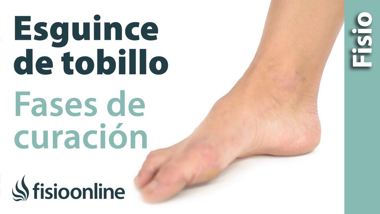 Esguince o rotura de ligamentos - Proceso y fases de curación - YouTube