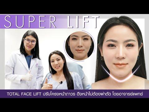 ร้อยไหม Super Lift โดย อาจารย์หมอนุ่น อันดับ1คลินิกปรับรูปหน้า อทิตาคลินิก Tel.094-324-4442