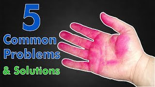 5 Common Problems and SOLUTIONS