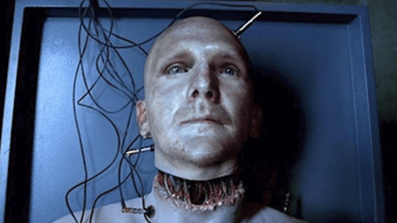 Kopftransplantation