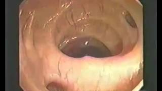 Шок Видео различных кишечников