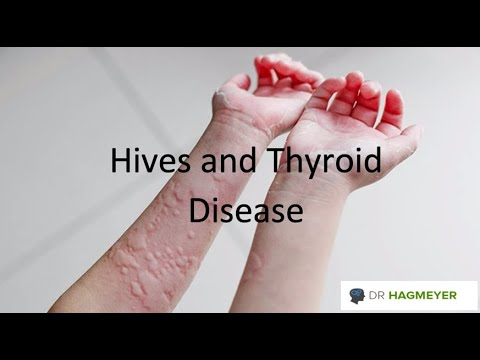 Hives And Hypothyroidism What You Need To Know About The