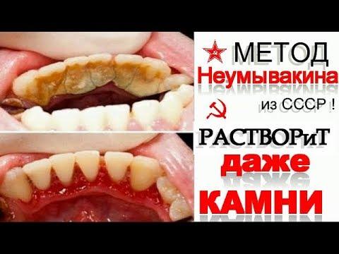 СЕКРЕТНЫЙ Рецепт Отбеливания и Лечения ЗУБОВ по Неумывакину - в ...