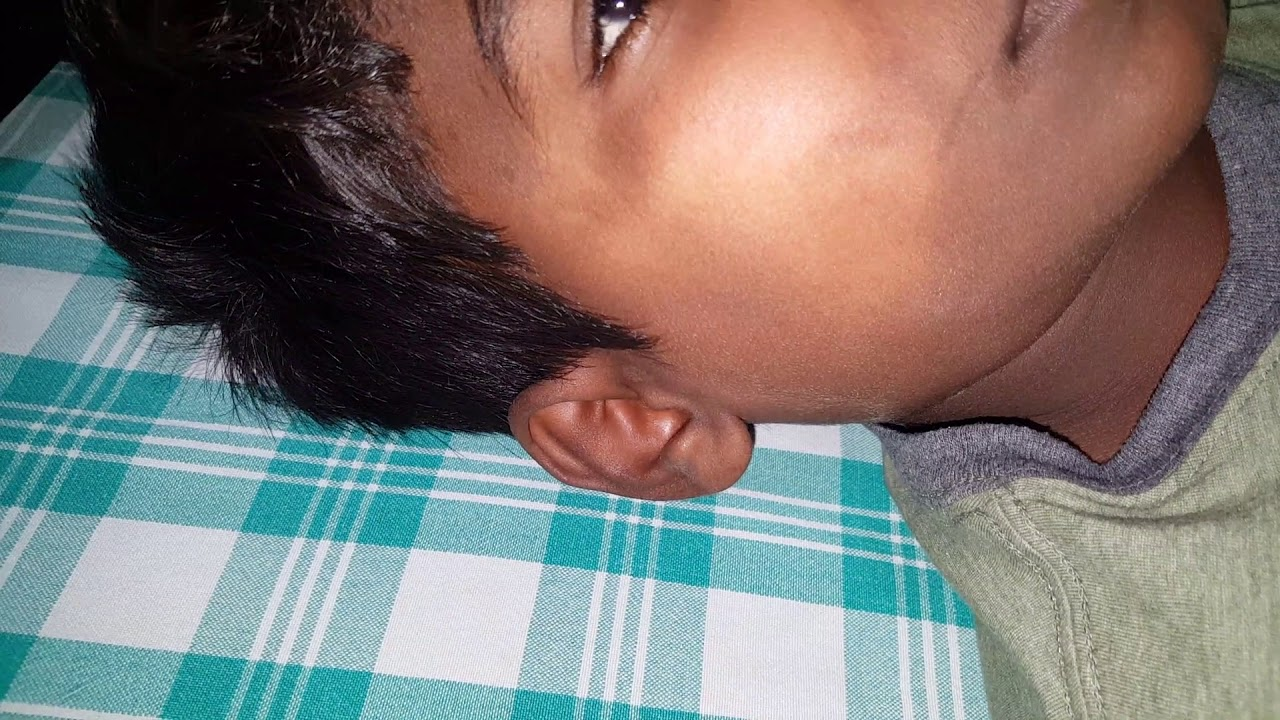 non hodgkins lymphoma multiple hard movable nodes in 15 year oldnon hodgkins lymphoma multiple hard movable nodes in 15 year old child