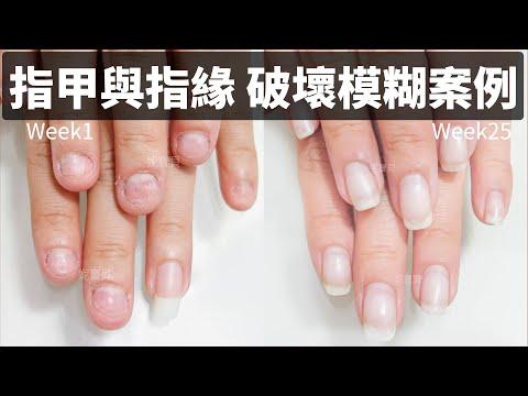 指甲矯正案例-咬指甲太嚴重,指甲與指緣都模糊~25周改善驚人!