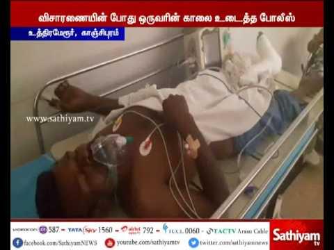 Kanchipuram - Police Breaks Suspect Leg In Elderly Man Murder Case