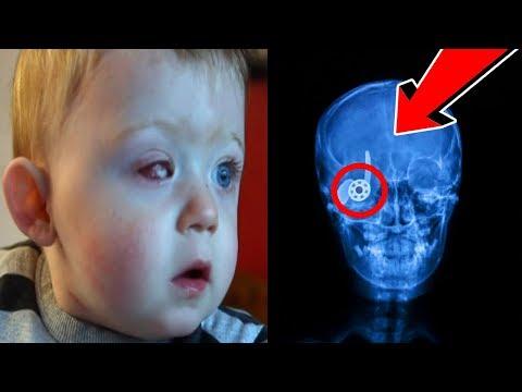 kid loses eye spinning fidget spinner..