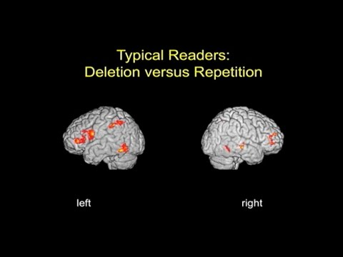 Brain Imaging Studies of Reading and Reading Disability