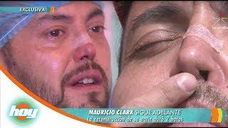 Mauricio Clark tuvo que reconstruirse la nariz | Hoy