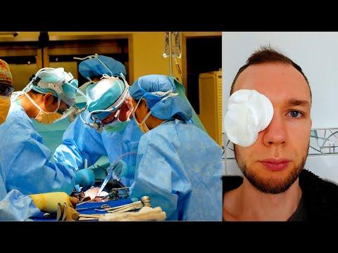 Meine Augen OP - Hagelkorn Gerstenkorn Operation - Chalazion am Auge aufstechen - Erfahrung deutsch