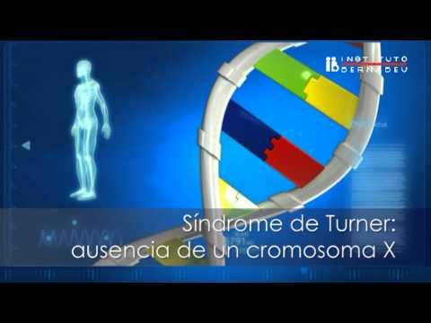 Momios de Progol 1988 y sus % mas ALTOS von YouTube · Dauer:  14 Minuten 6 Sekunden