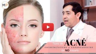 Tipos de Acne Tratamientos Remedios Características y Consecuencias si NO se Trata | Vicente García