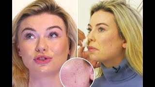 Georgia Toffolo gets emotional as she reveals her acne prone skin for the first time on This