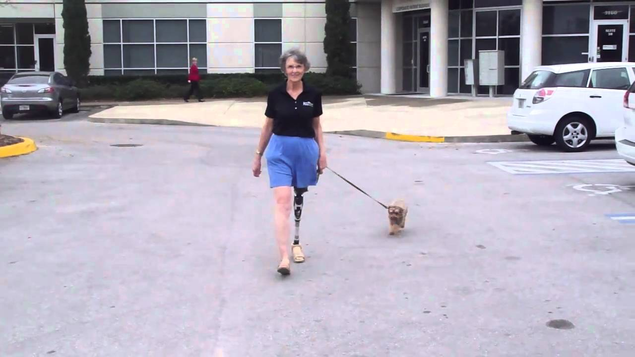 Valerie, Above Knee Amputee, Walking her Dog - YouTube