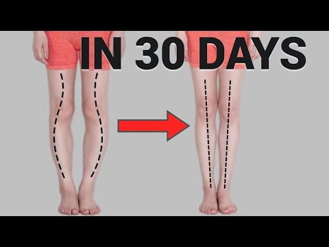 Get Straight and longer Legs in 30 Days! Fix Knee Internal Rotation (Bowed legs)