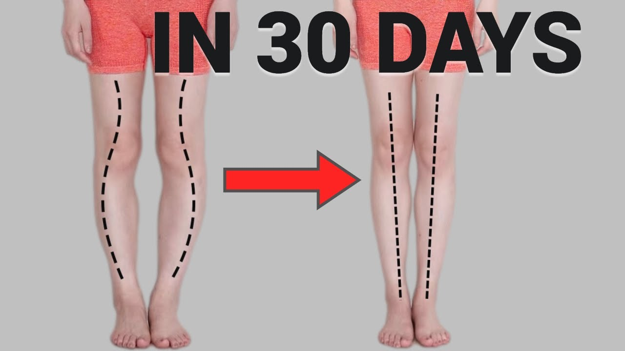 Download Get Straight and longer Legs in 30 Days! Fix O or X-Shaped Legs (Knee Internal Rotation)