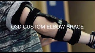 O3D Custom Made Hinged Elbow Brace