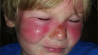 3-Year-Old Boy Gets Second-Degree Burns On Face Despite Using Sunscreen