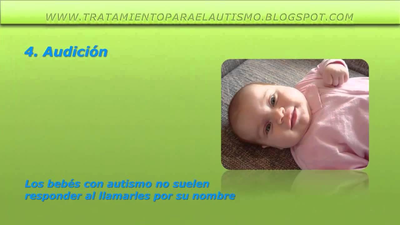 autismo leve sintomas en bebes