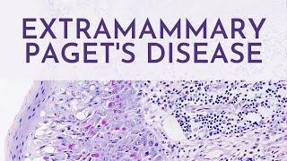 Extramammary Paget's Disease - Pathology Mini Tutorial