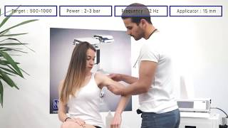 MODUS ESWT Touch - Calcified Tendonitis Shoulder Treatment