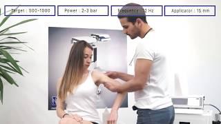 MODUS ESWT Touch - Calcified Tendonitis Shoulder Treatment