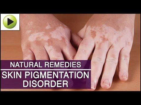 skin-care---skin-pigmentation---natural-ayurvedic-home-remedies