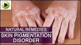 Skin Care - Skin Pigmentation - Natural Ayurvedic Home Remedies