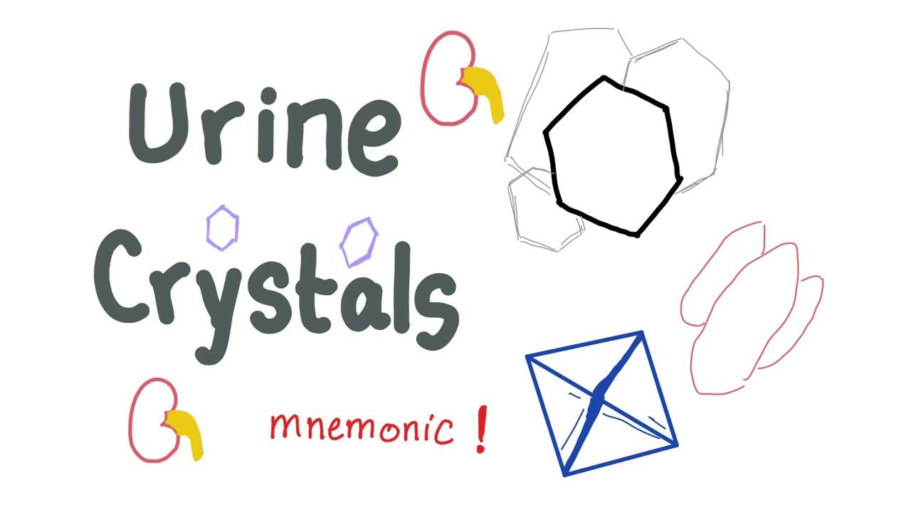 medium resolution of urine crystals with a mnemonic