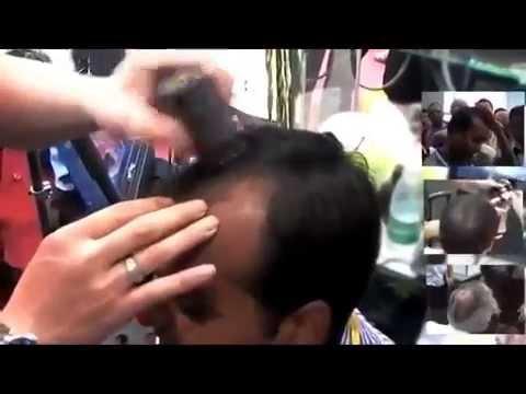 Распродажа. Средство от облысения «FULLY»  восстановление волос
