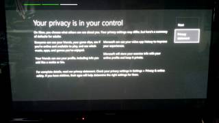 Kinect-less Xbox One First Boot, Setup, & Update