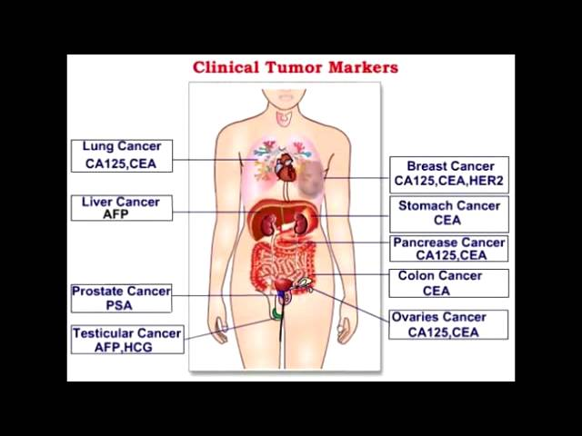 Tumor Markers Alpha Fetoprotein Beta Hcg Ca 125 Youtube