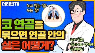 [더라인TV]더라인 정유석원장_ 코연골을 묶으면 연골 …