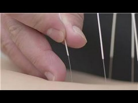 Arthritis Information & Relief : Acupuncture & Arthritis Pain