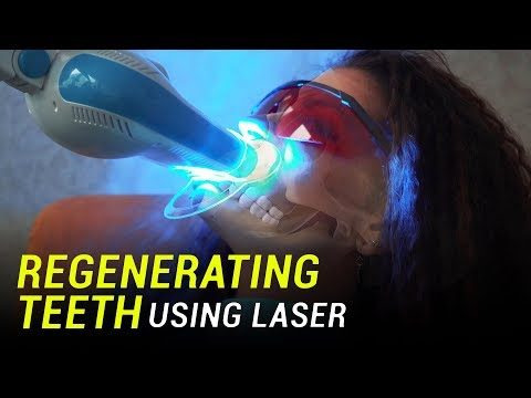 Researchers use lasers to regenerate teeth from stem cells