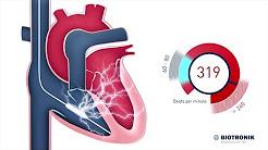 hqdefault - Implantable Cardioverter-defibrillator And Depression
