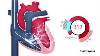 implantable cardioverter defibrillator icd therapy movie 6 biotronik