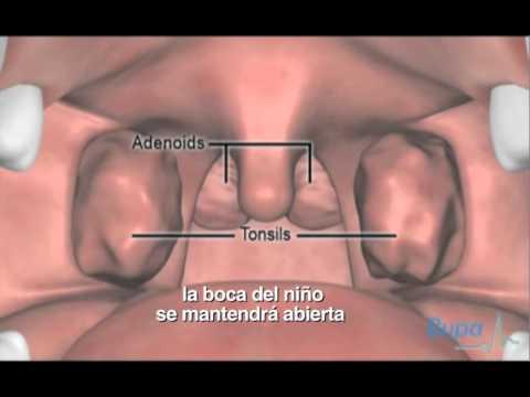 Extracción de adenoides y amígdalas - YouTube