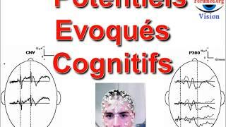 Potentiels évoqués cognitifs en Neuropsychiatrie