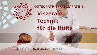 Video Hüfte viszerale Osteopathie/ osteopathische Techniken Hüftgelenk Faszien/ Fascia iliaca download MP3, 3GP, MP4, WEBM, AVI, FLV Juli 2018