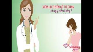 Bệnh viêm lộ tuyến cổ tử cung có thể chữa khỏi hay không? ?