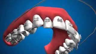 Установка брекетов(На данном видео показана принципиальная схема установки брекетов, а также мезанизм лечебного воздействия..., 2014-01-15T20:18:44.000Z)