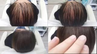 Kadınlarda Saç Simülasyon işlemi Serkan Bozkurt
