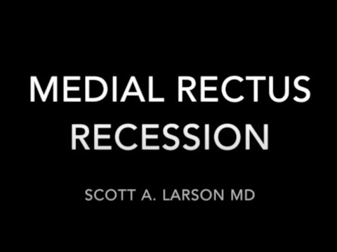 Medial Rectus Recession Surgery