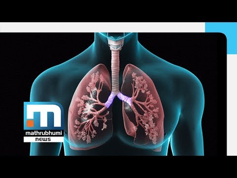 Lung Diseases And Treatment| Doctor@2PM| Mathrubhumi News