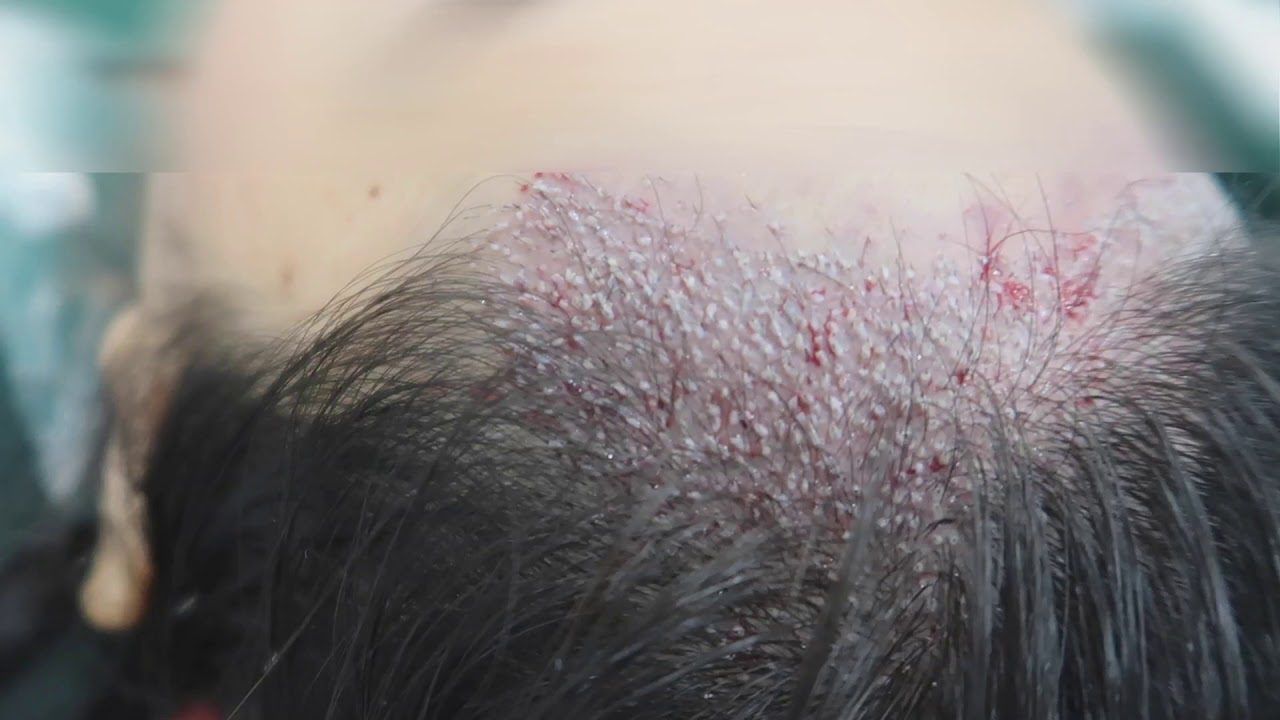 LOWERING HAIRLINE FOR FEMALE HAIRLINE   Hair Transplant Malaysia ABHRS Centre
