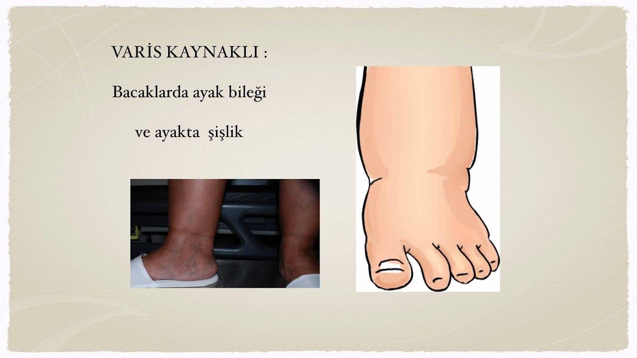 Ayak Şişmesi Neden Olur Nasıl İner Tedavisi