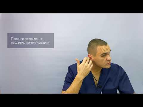 Лазерная отопластика (коррекция лопоухости): ответы на вопросы пациентов   Доктор Листратенков